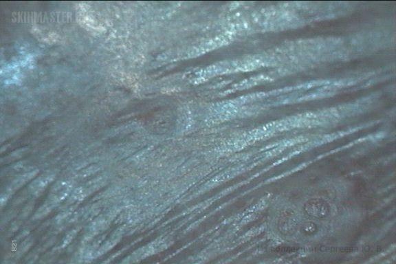 Остроконечные кондиломы. Доклиническая стадия болезни