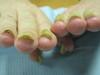 Приобретенный гиперкератотический онихолизис. №864