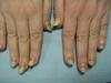 Приобретенный гиперкератотический онихолизис. №865