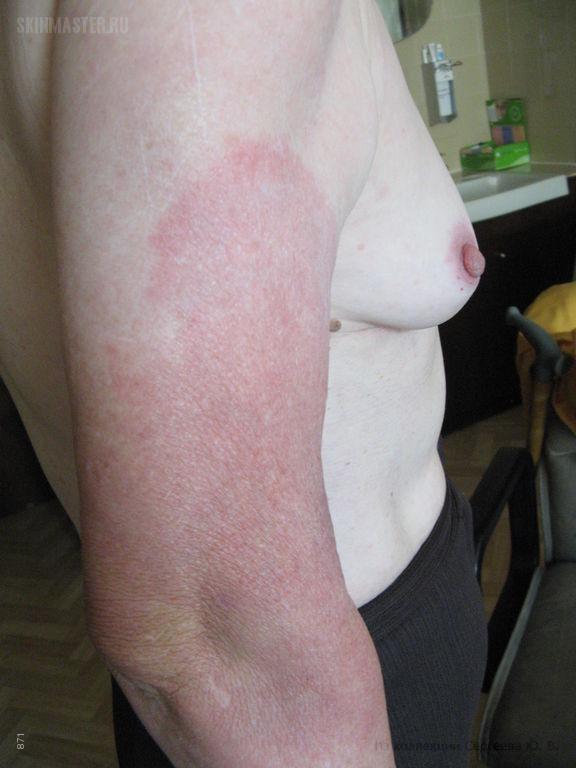 Лаймская болезнь. Стадия III: хроническая инфекция. Хронический атрофический акродерматит, фаза воспаления.
