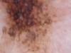 Преканцерозный ограниченный меланоз Дюбрея. №885
