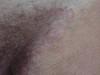 Распространенная руброфития гладкой кожи и крупных складок, онихомикоз кистей. №936