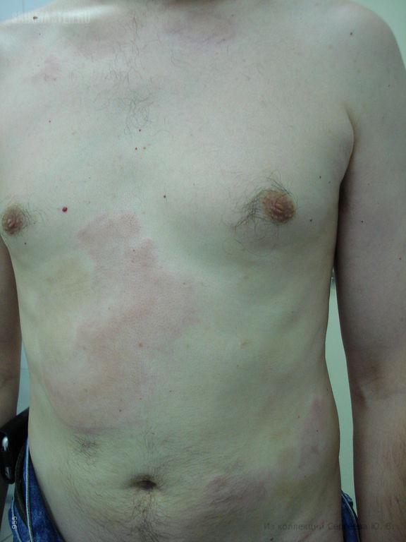 Уртикарный ангиит (васкулит)