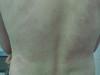Васкулит уртикарный. Клинические фото #956